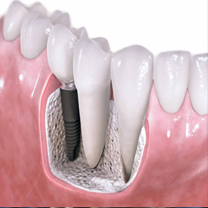 Dental implant | WISDOM TOOTH REMOVAL | Dental Impeant in
